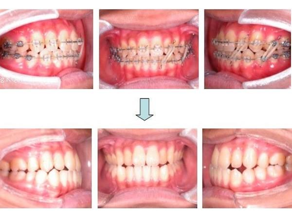 牙齿矫正案例_西宁口腔医院